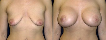 Breast Lift before 996865