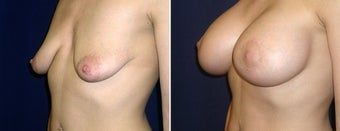Breast Lift after 996865