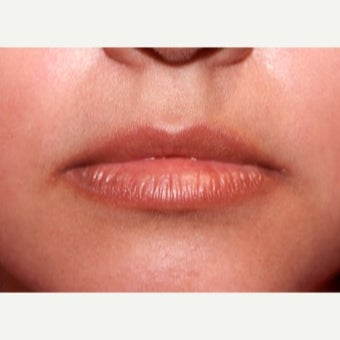 27 year old woman treated with Restylane before 2013371
