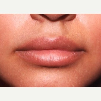 27 year old woman treated with Restylane after 2013371