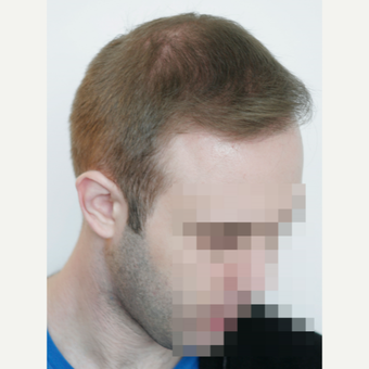 25-34 year old man treated with FUE Hair Transplant after 3682620