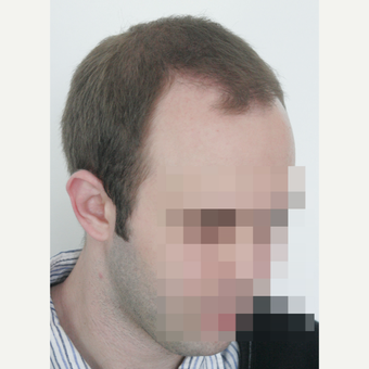 25-34 year old man treated with FUE Hair Transplant before 3682620