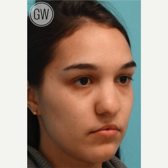 18-24 year old woman treated with Revision Rhinoplasty - Cleft rhinoplasty and lip fat grafting before 3473495
