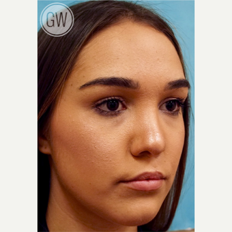 18-24 year old woman treated with Revision Rhinoplasty - Cleft rhinoplasty and lip fat grafting after 3473495