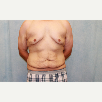25-34 year old man treated with Male Tummy Tuck before 2954954