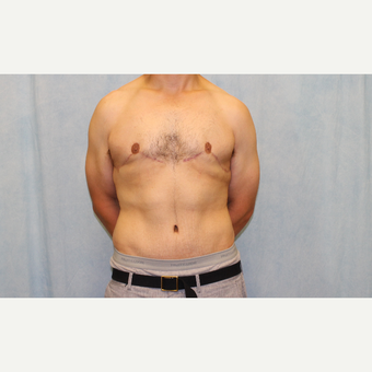 25-34 year old man treated with Male Tummy Tuck after 2954954