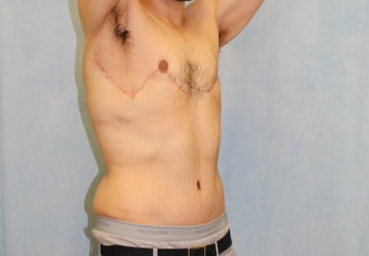 25-34 year old man treated with Male Tummy Tuck 2954954