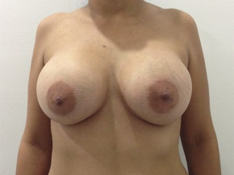 27 yo Female Silicone breast augmentation 450cc high profile smooth round after 1293109