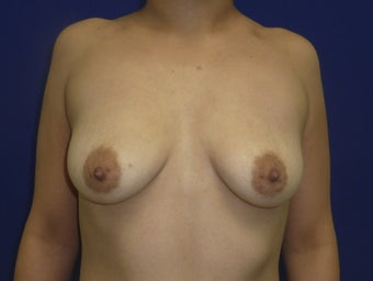 27 yo Female Silicone breast augmentation 450cc high profile smooth round before 1293109