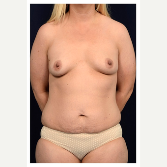 25-34 year old woman treated with Mommy Makeover before 3076414