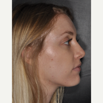 18-24 year old woman treated with Septoplasty 1 year post-op after 3499809