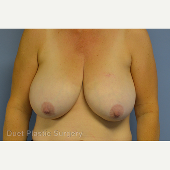 55-64 year old woman treated with Breast Reduction before 3350335