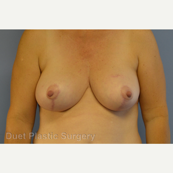 55-64 year old woman treated with Breast Reduction after 3350335
