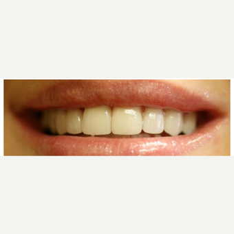 25-34 year old woman treated with Porcelain Veneers after 3411358