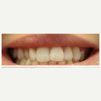 25-34 year old woman treated with Porcelain Veneers before 3411358