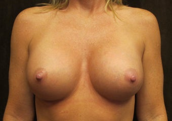 Breast Augmentation- 35 years old mother of 2 after 1242400