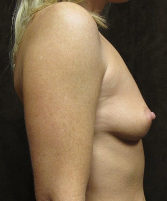 Breast Augmentation- 35 years old mother of 2 1242400
