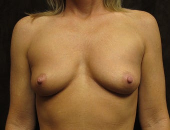Breast Augmentation- 35 years old mother of 2 before 1242400