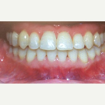 25-34 year old woman treated with Braces after 2242930