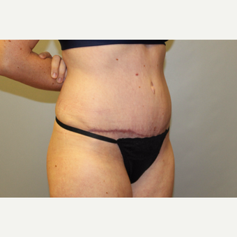 25-34 year old woman treated with Tummy Tuck after 3529277