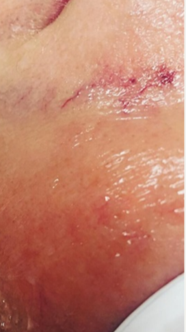 35-44 year old woman treated with Laser Treatment
