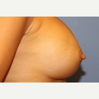 44 year old woman with long nipples treated with nipple reduction