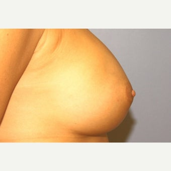 44 year old woman with long nipples treated with nipple reduction after 1536664