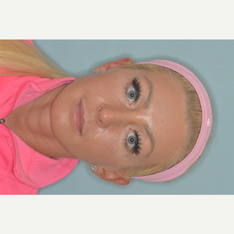 25-34 year old woman treated with Revision Rhinoplasty after 3838545