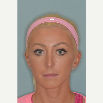25-34 year old woman treated with Revision Rhinoplasty before 3838545
