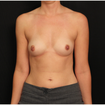 31 year old female with bilateral submuscular silicone implants placed through the underarm before 3522755