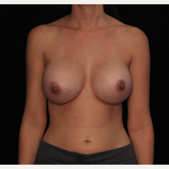 31 year old female with bilateral submuscular silicone implants placed through the underarm after 3522755