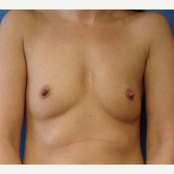 25-34 year old woman treated with Breast Augmentation before 3322398