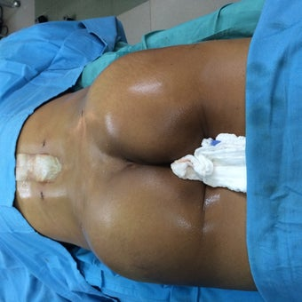 45-54 year old woman treated with Brazilian Butt Lift after 2141914