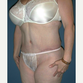 45-54 year old woman treated with Extended Tummy Tuck and Liposuction after 3682410