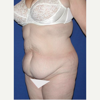 45-54 year old woman treated with Extended Tummy Tuck and Liposuction before 3682410