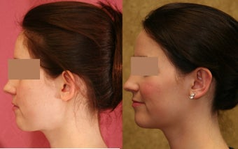 Ear pinning or otoplasty before and after pictures 1010472