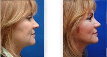 Facelift for jaw and neckline before 88833
