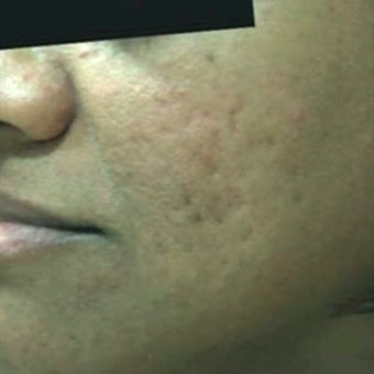 25-34 year old man treated with Derma Roller before 1789336