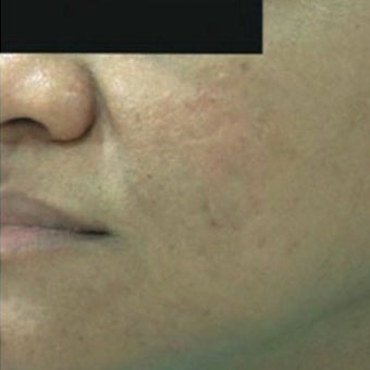 25-34 year old man treated with Derma Roller after 1789336
