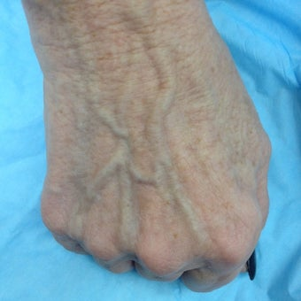 60 yo female with prominent hand veins treated by laser.