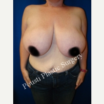 25-34 year old woman treated with Breast Reduction before 3006651