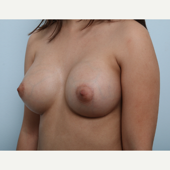 Breast Augmentation after 3425361