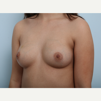 Breast Augmentation before 3425361