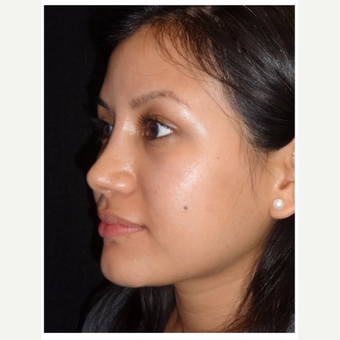 25-34 year old woman treated with Rhinoplasty after 3047055