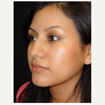 25-34 year old woman treated with Rhinoplasty before 3047055
