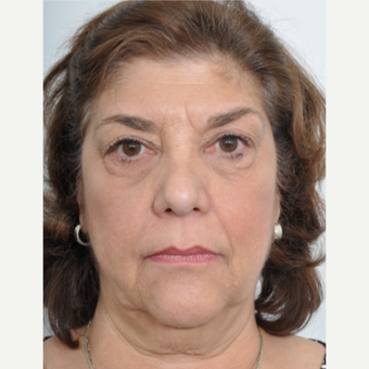 55-64 year old woman treated with Facelift before 3060951