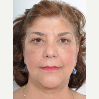 55-64 year old woman treated with Facelift after 3060951