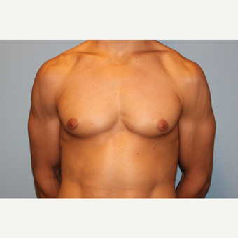 25-34 year old man treated with Male Breast Reduction before 3565057