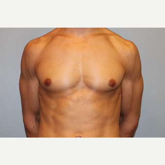 25-34 year old man treated with Male Breast Reduction after 3565057