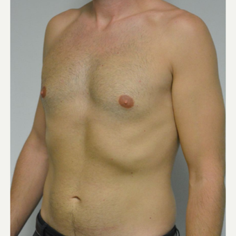 25-34 year old man treated with Male Breast Reduction before 3683760